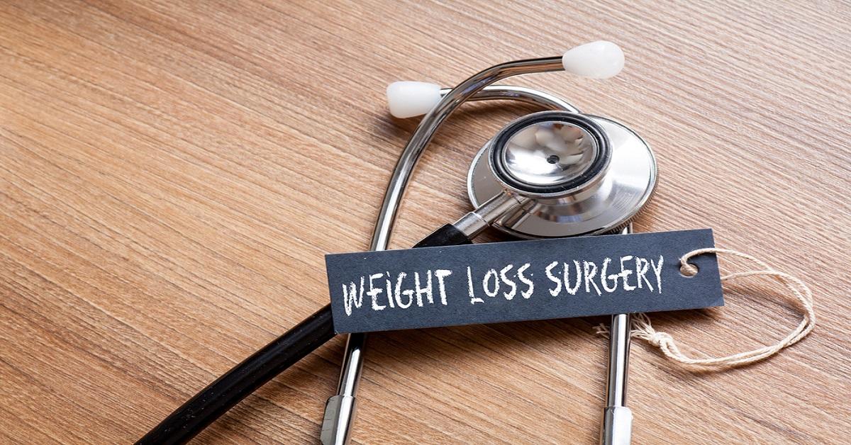 خسارة الوزن جراحيا