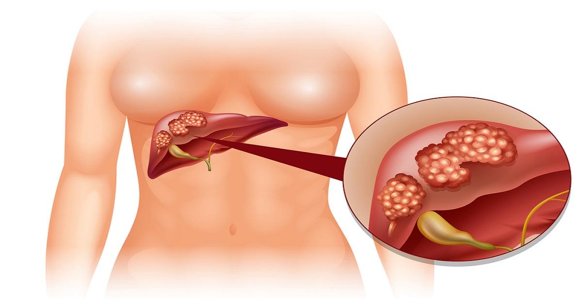 عملية استئصال جزء من الكبد لوجود يد