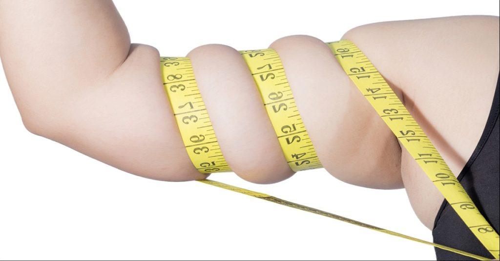 نتيجة عملية تحويل مسار المعدة و التخلص من الوزن الزائد