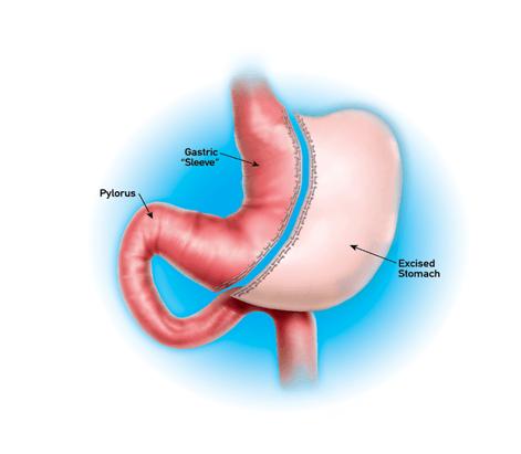 ما هي جراحة تكميم المعدة بالمنظار وما هي شروط إجراء العملية